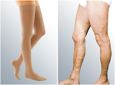 compression stockings-varicose veins-swelling
